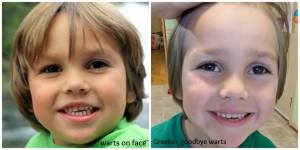 Grayson warts face